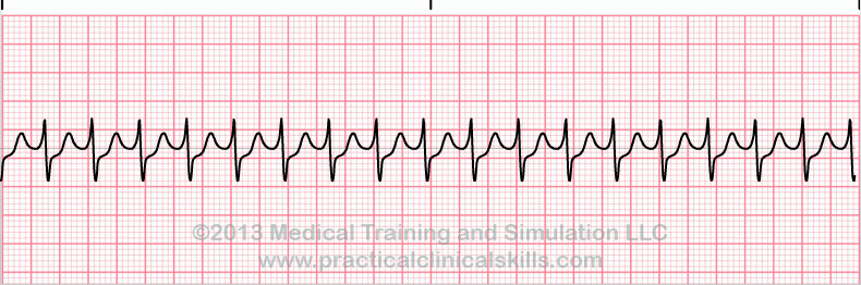 How to Run a Code Blue Like a Boss: Master ACLS Algorithms