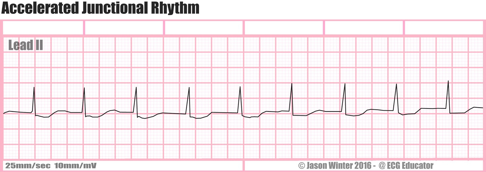 How To Interpret Read Ekgs Like A Boss Master Heart Rhythms